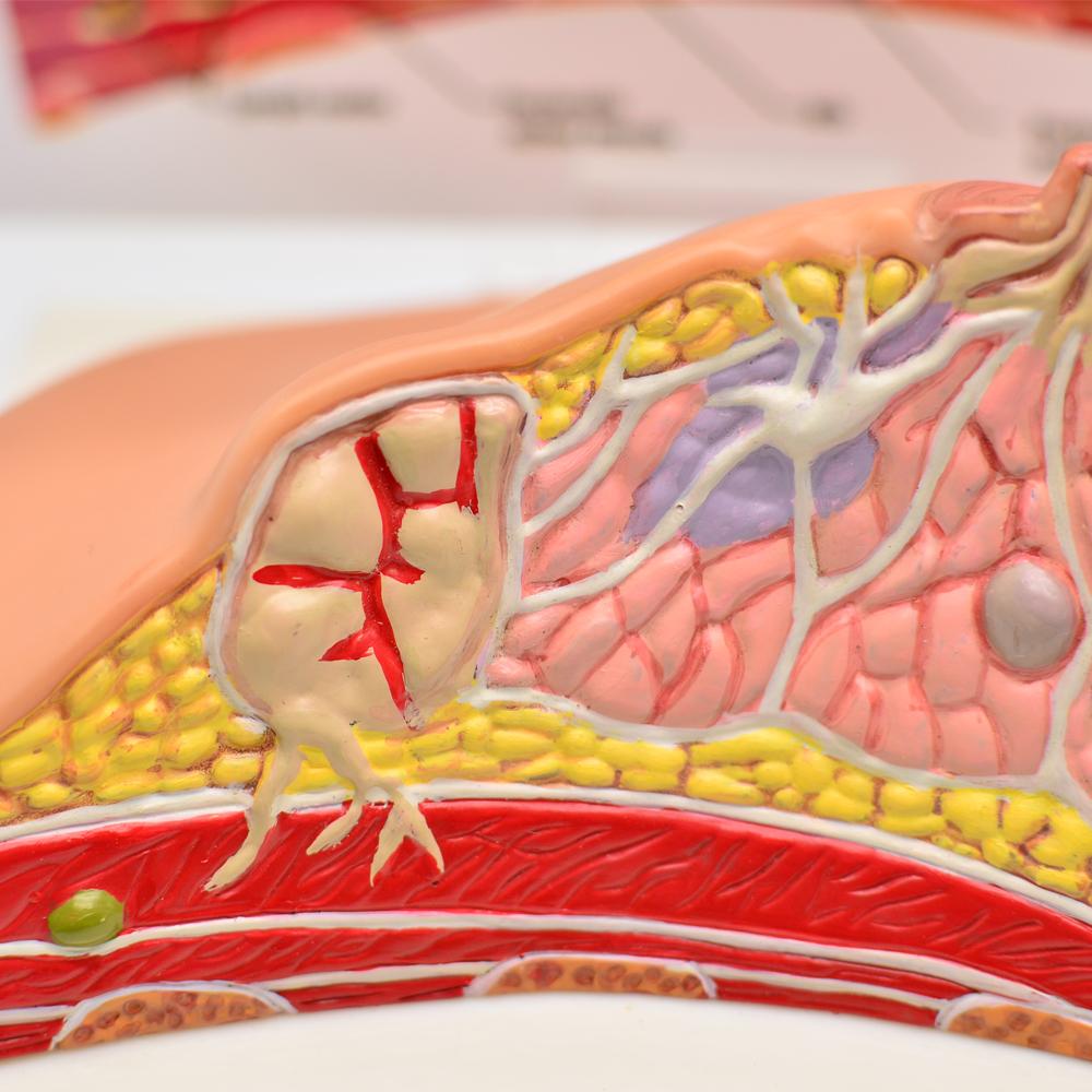 Female anatomical teaching breast cancer pathology model